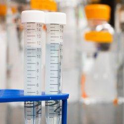 Tudnivalók a foglalkozási eredetű rákkeltő anyagokról